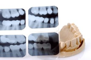 Dental X-Ray and mold